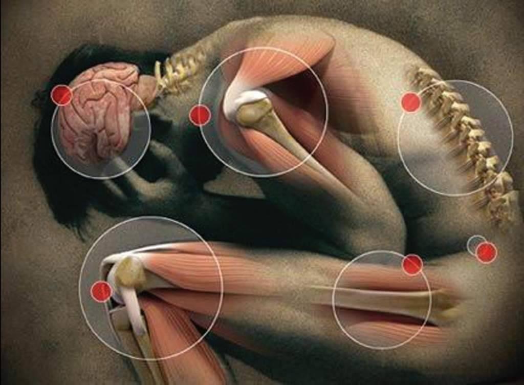 Виды аутоиммунных заболеваний нервной системы