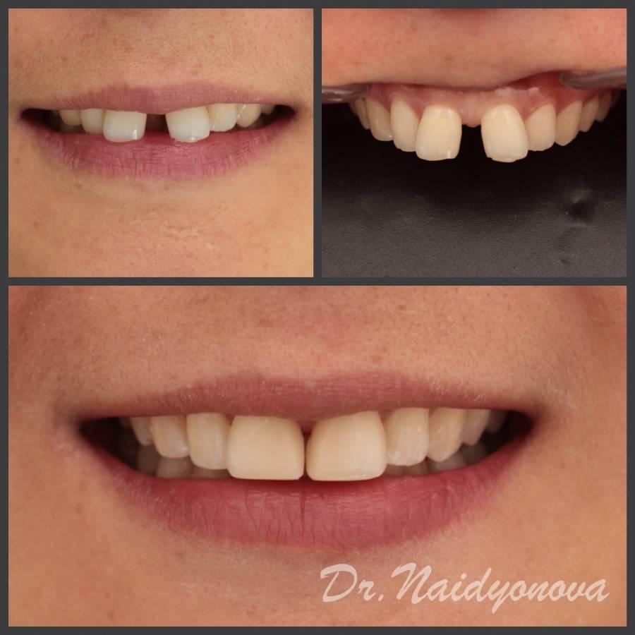 Вампирские зубы. зубы-клыки, как нарастить и стоит ли