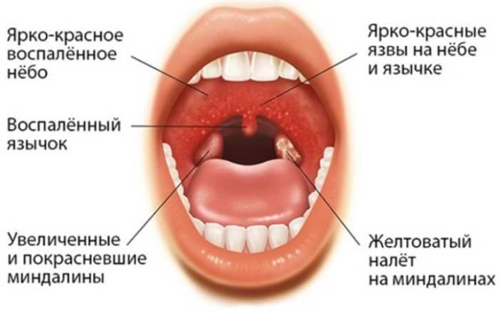 Бактериальная ангина у детей и взрослых – симптомы и лечение
