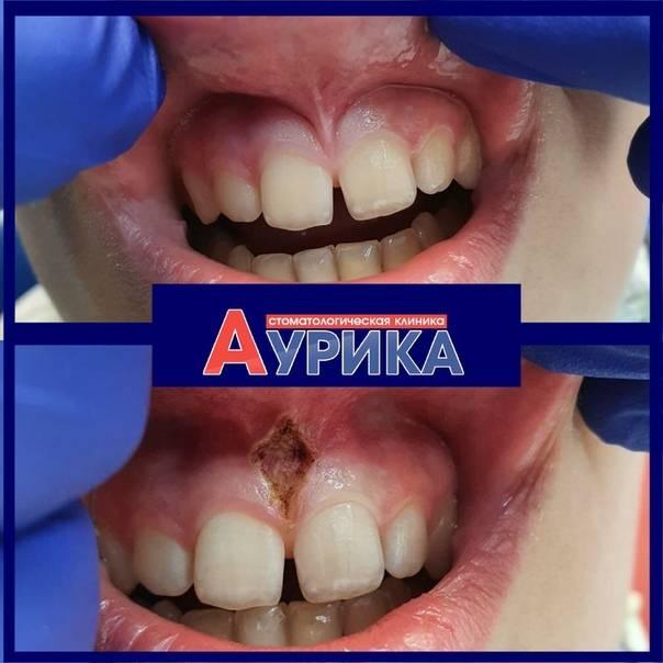 Что такое подрезание уздечки верхней губы и зачем нужна пластика?