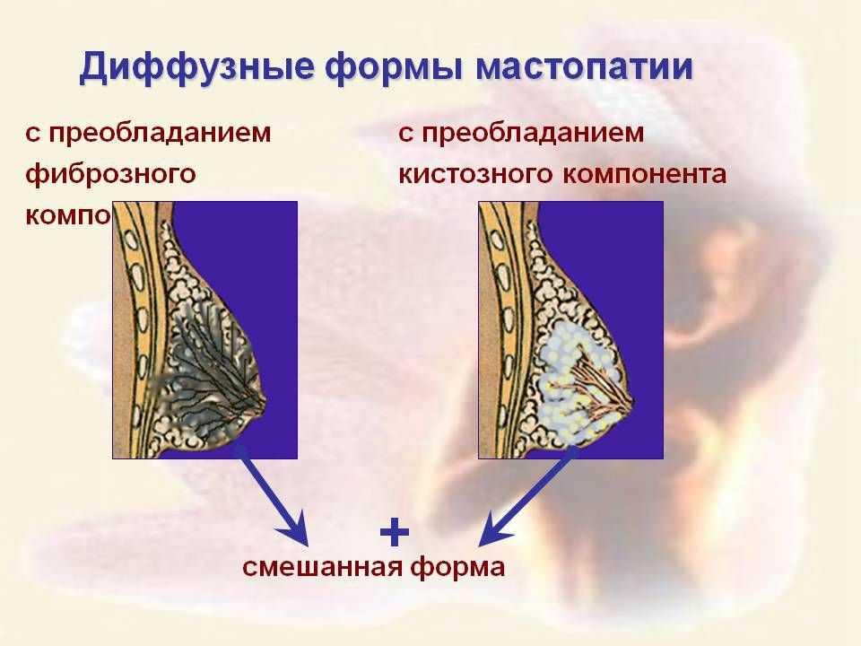 Что такое остаточная фиброзно-кистозная мастопатия