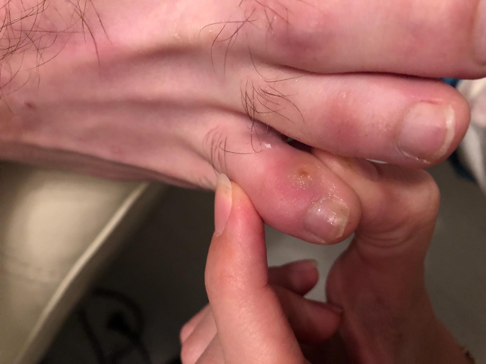 Как лечить мозоли на пальцах рук