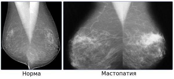 Что такое диффузная фиброзно-кистозная мастопатия и как ее лечить