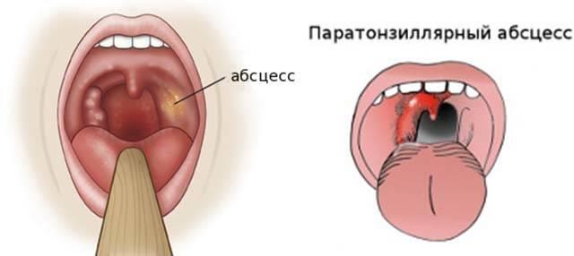 Рак миндалин: причины, признаки, терапия