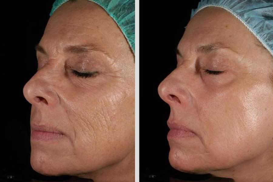 Неодимовое омоложение кожи — биомед