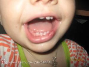 Что делать, если ребёнок разбил губу