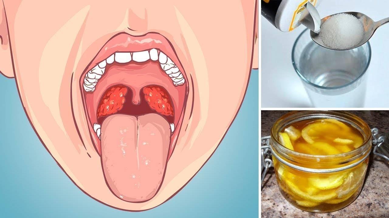 Как вылечить хронический тонзиллит навсегда: средства народной медицины