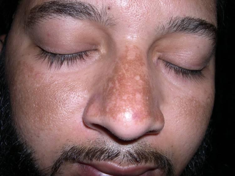 Хлоазма - что это такое? причины, диагностика, лечение. как бороться с хлоазмой на лице и теле