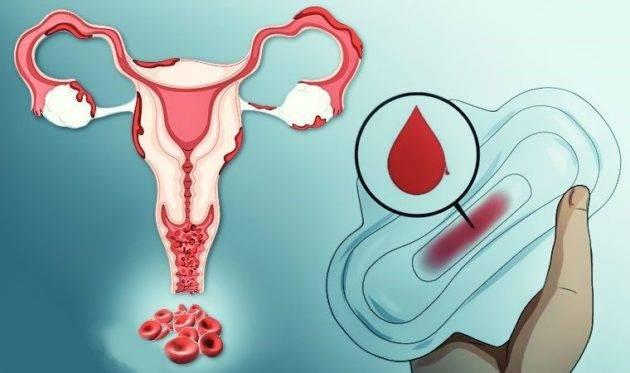 Какие бывают месячные при эндометриозе?