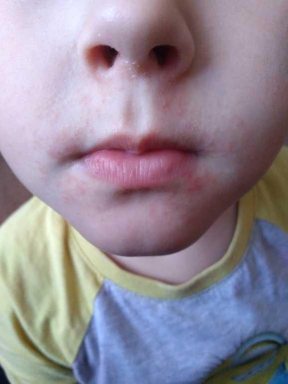Что делать, если появилось раздражение или сыпь вокруг рта у ребенка?