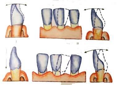 Почему шатаются зубы и что делать, чтобы их укрепить
