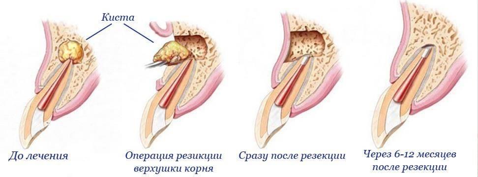 Симптомы и лечение кисты на десне