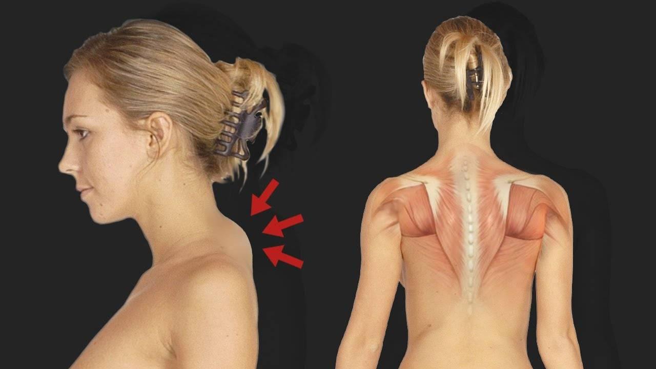 Как избавиться от «бизоньего» горба на шее