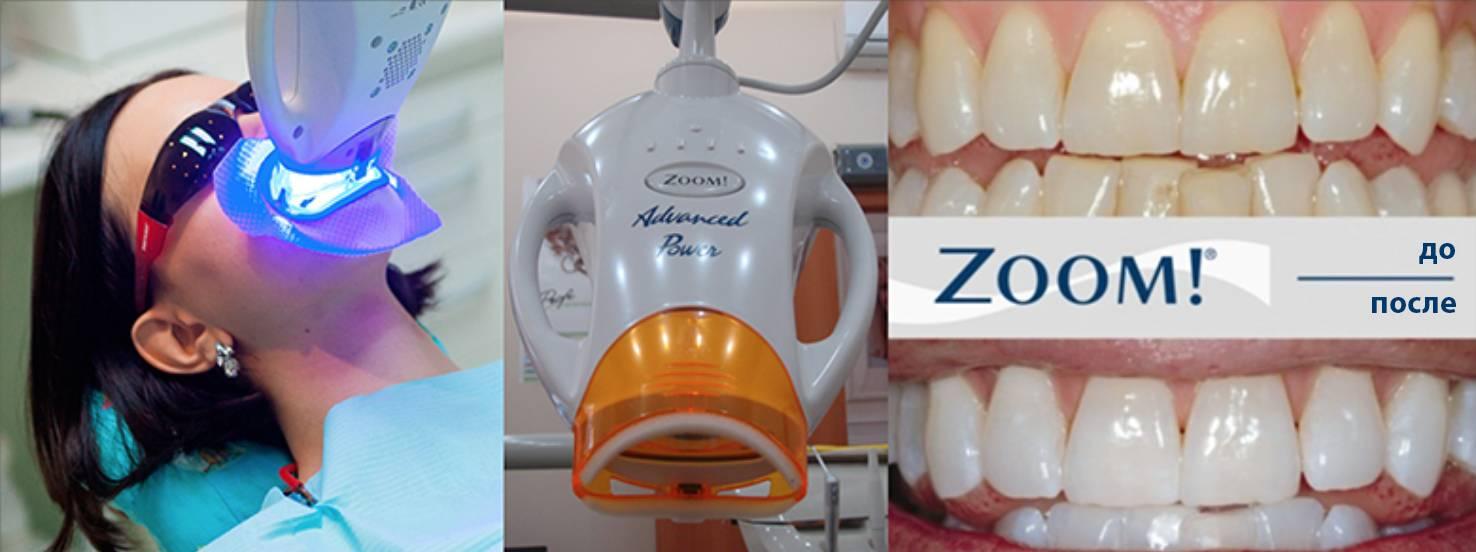 На сколько хватает отбеливания зубов