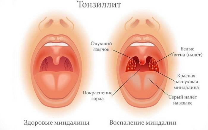 Причины появления стоматита в горле, схема лечения, эффективные средства