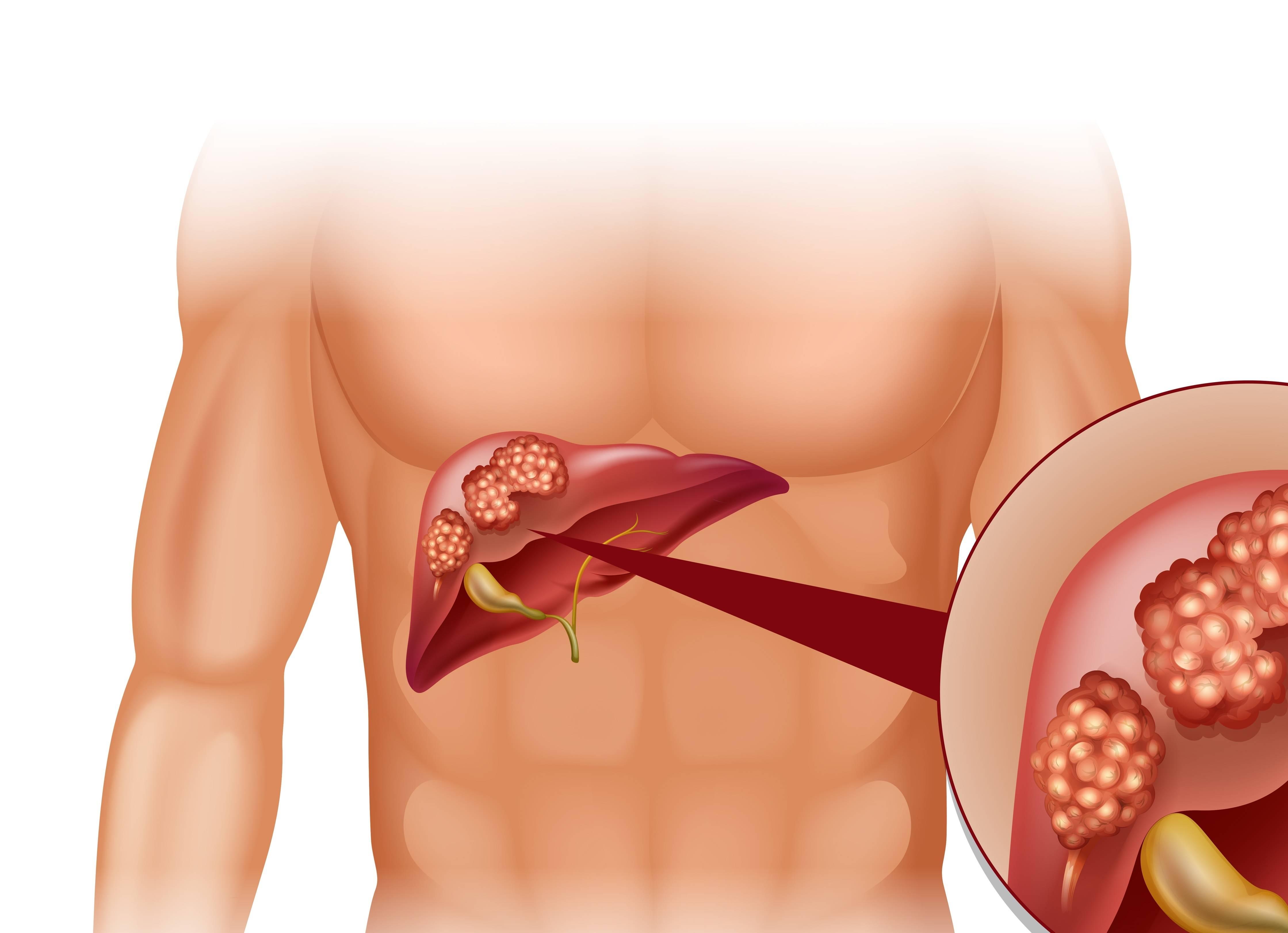 Как распознать симптомы и признаки рака яичника?