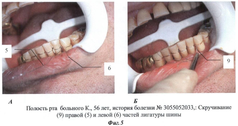 Как происходит процедура шинирования зубов, и в каких случаях она необходима