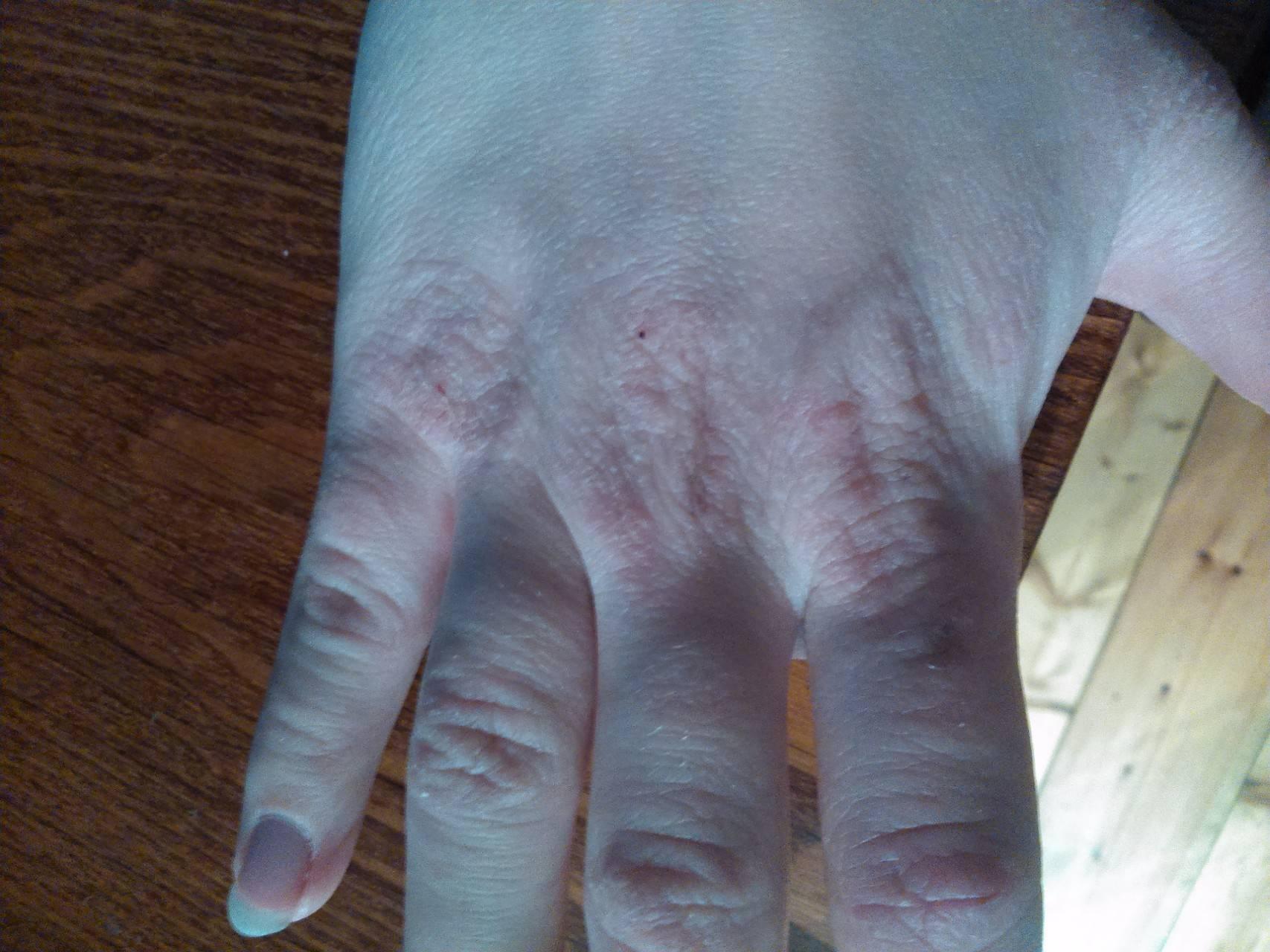 Почему шелушатся руки (ладони) и ноги (стопы) - патологические механизмы шелушения кожи