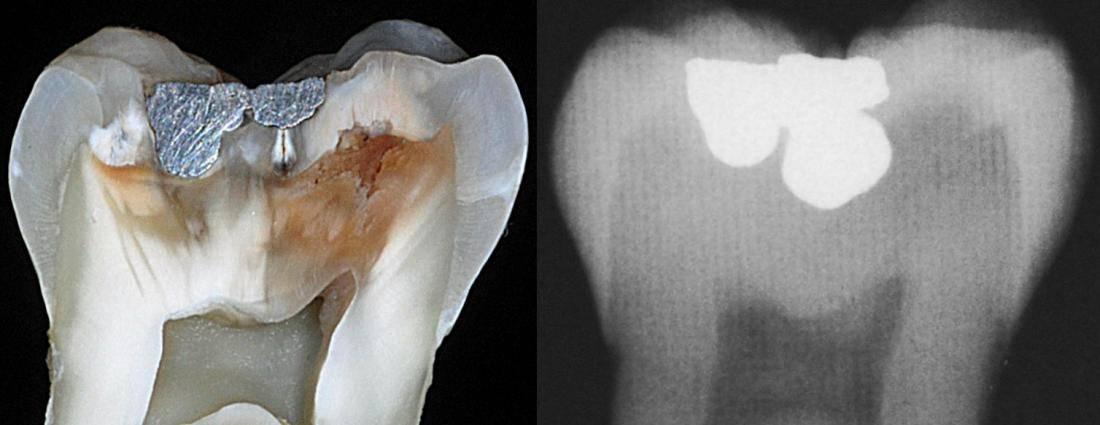 Три формы кариеса: особенности протекания патологических процессов