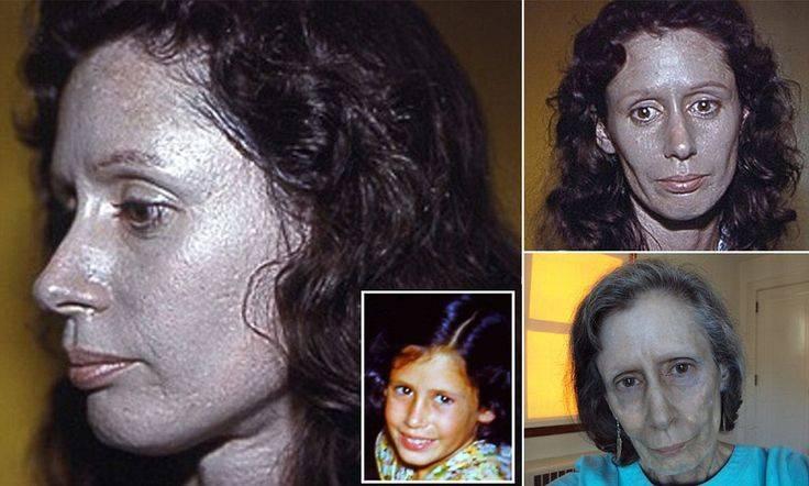 Как выглядит нормальный тип кожи лица и как определить свой?