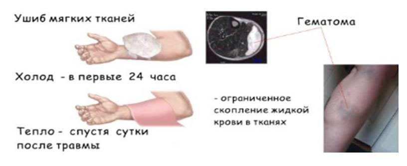 Подкожная гематома: причины и лечение. последствия ушиба