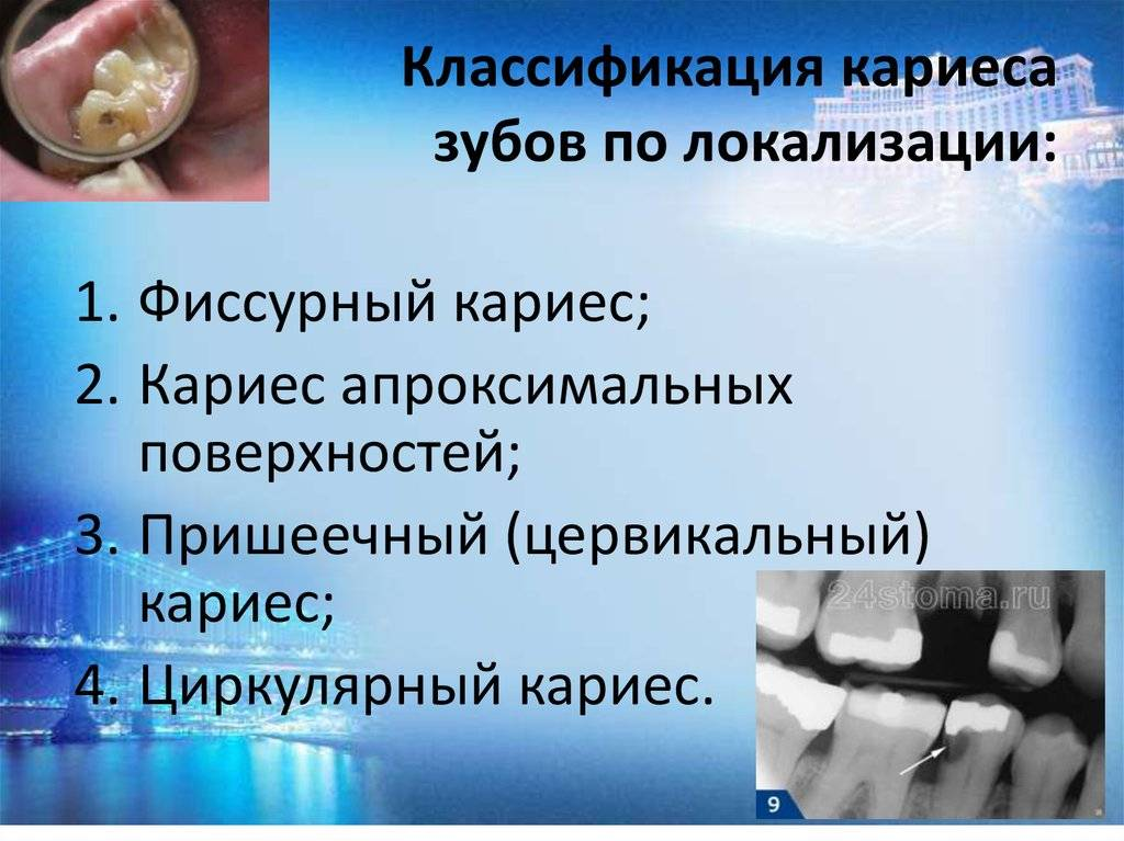 Диагностика и профилактика кариеса зубов