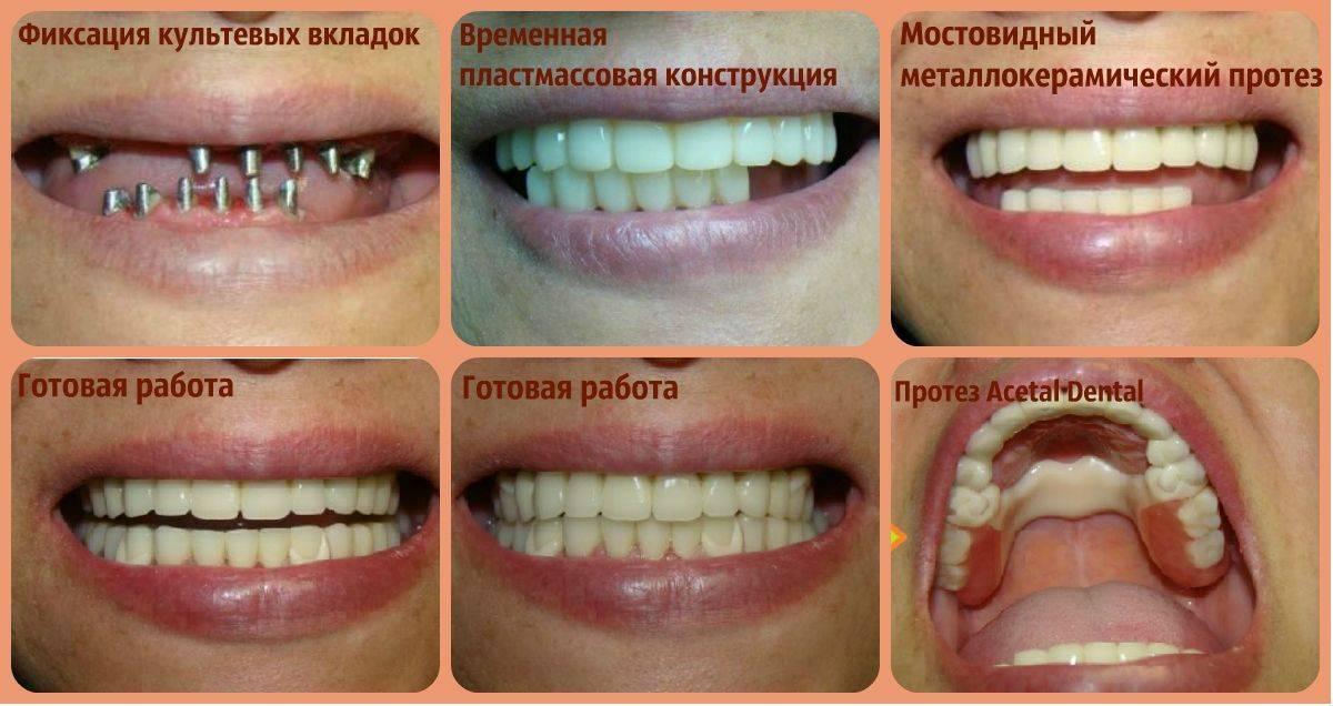 Правила установки керамической вкладки на зуб