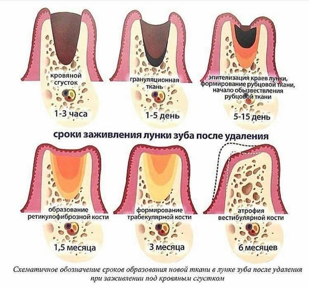 О чем говорят рекомендации врача: можно ли пить обезболивающее после удаления зуба?