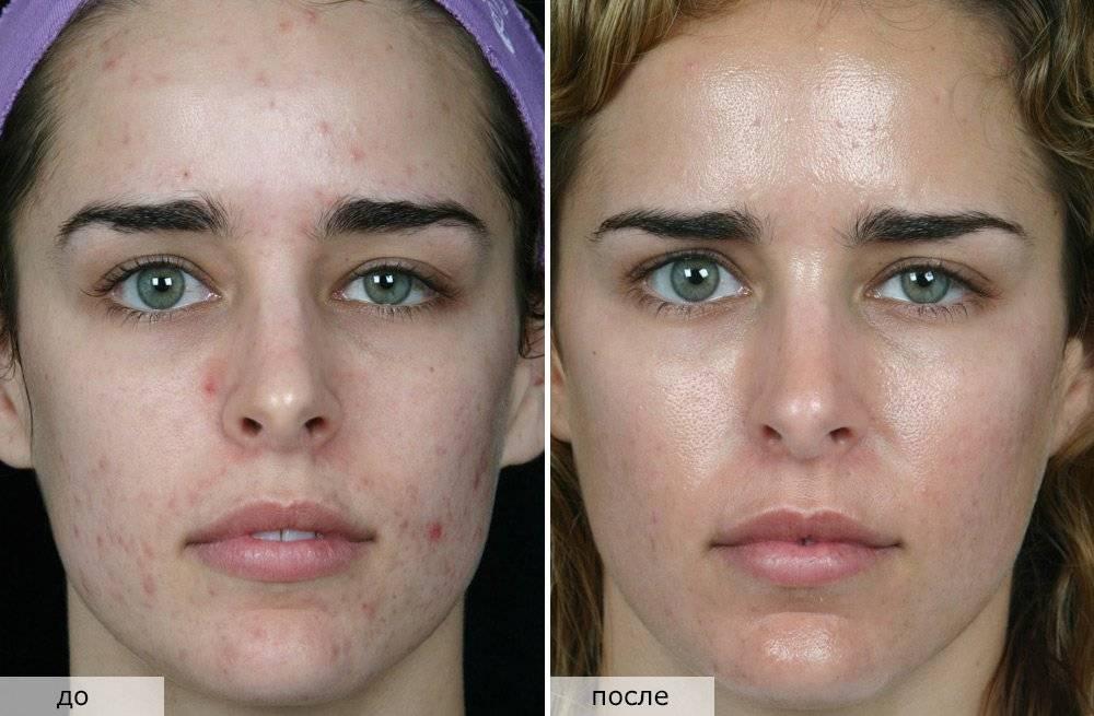 Атравматическая чистка лица – базовый уход за кожей