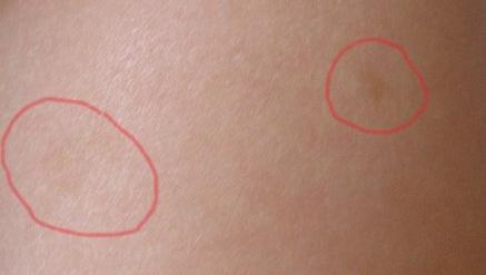 Розоватые пятна на коже