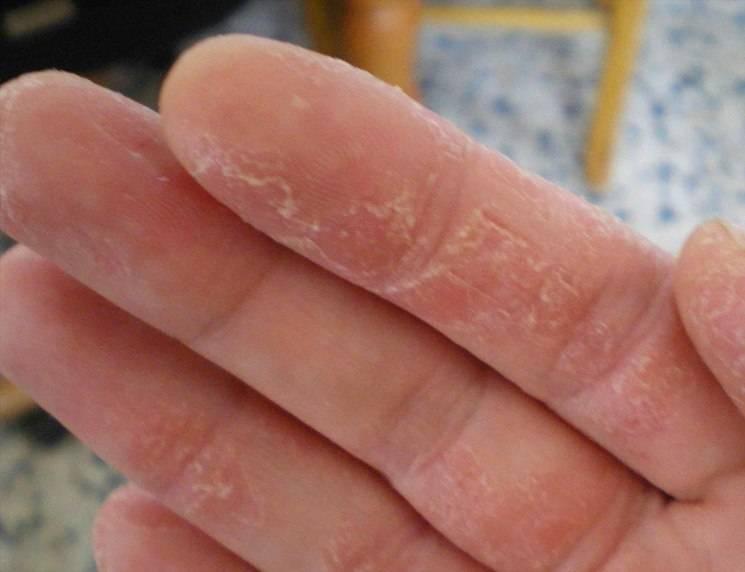 Мокнущий дерматит — причины, симптомы и лечение