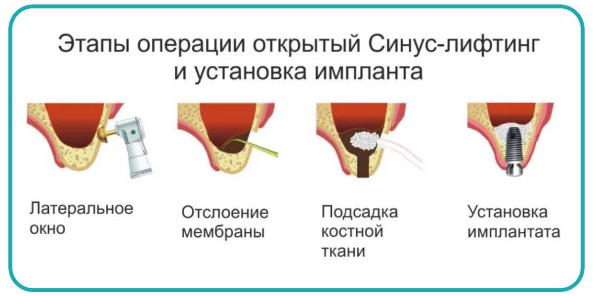 Костная пластика при имплантации зубов: отзывы