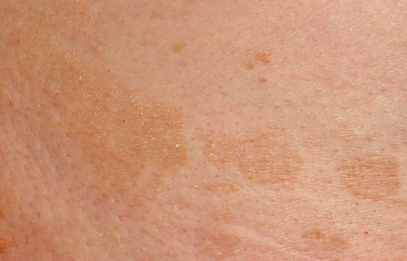 Как отличить розовый лишай от сифилиса
