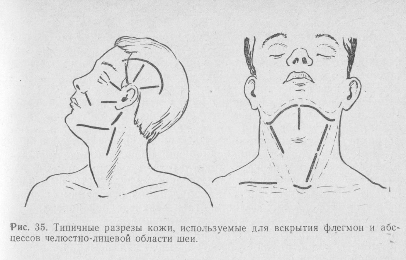 Флегмона подъязычной области и флегмона дна полости рта