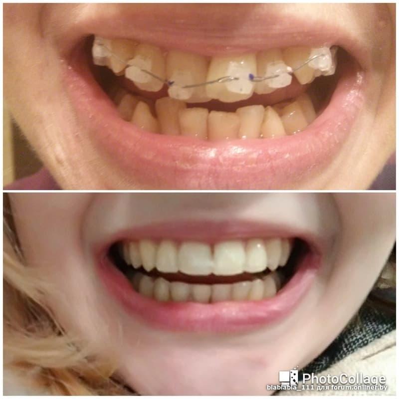 Что делать, если после снятия брекетов зубы искривились и разъехались, могут ли они вернуться в исходное положение сами?