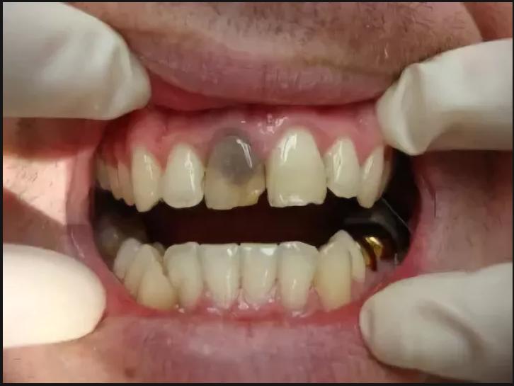 Что такое мертвый депульпированный зуб, сколько живет единица без нерва, каковы причины почернения и особенности ухода?