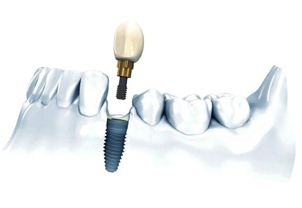 Перечень противопоказаний к имплантации зубов, о которых важно знать