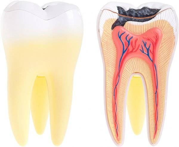 Почему все еще не проходит: как долго болит зуб после лечения кариеса?