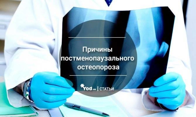 Остеопороз при климаксе: причины, симптомы и профилактика