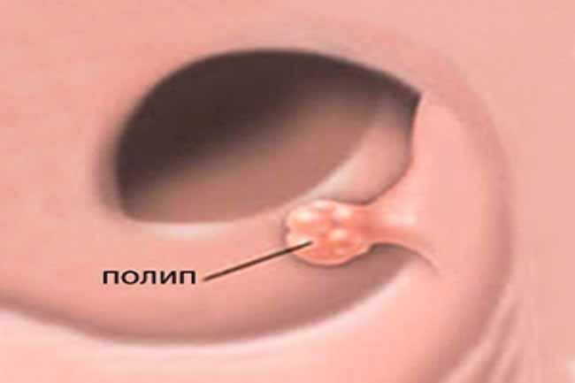 Симптомы полипов в кишечнике у женщин — характерные признаки новообразований в каждом из 4 отделов