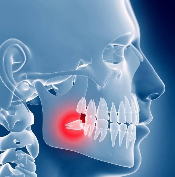 Что делать, если болит десна и зуб мудрости: как снять боль в домашних условиях?