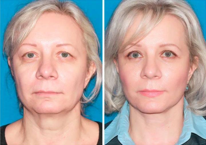 Асимметрию лица можно исправить без пластической операции