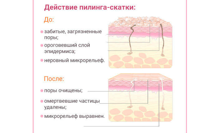 Пилинг-скатка для лица – что это такое, как пользоваться