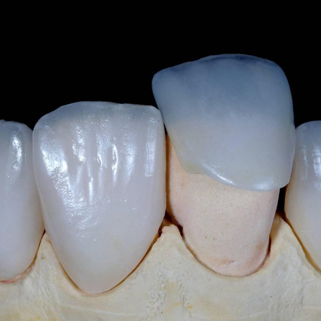 Цельнолитая коронка— надежное восстановление жевательной группы зубов