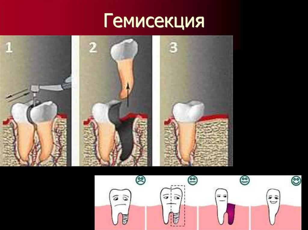 Гемисекция зуба — насколько это эффективная процедура