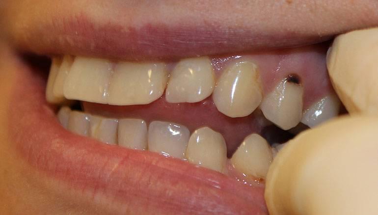 Почему портятся и ломаются зубы и как избежать их разрушения
