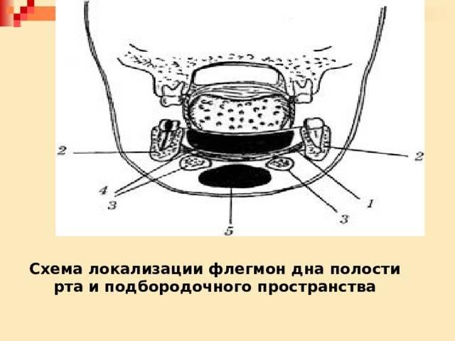 Абсцессы и флегмоны головы и шеи