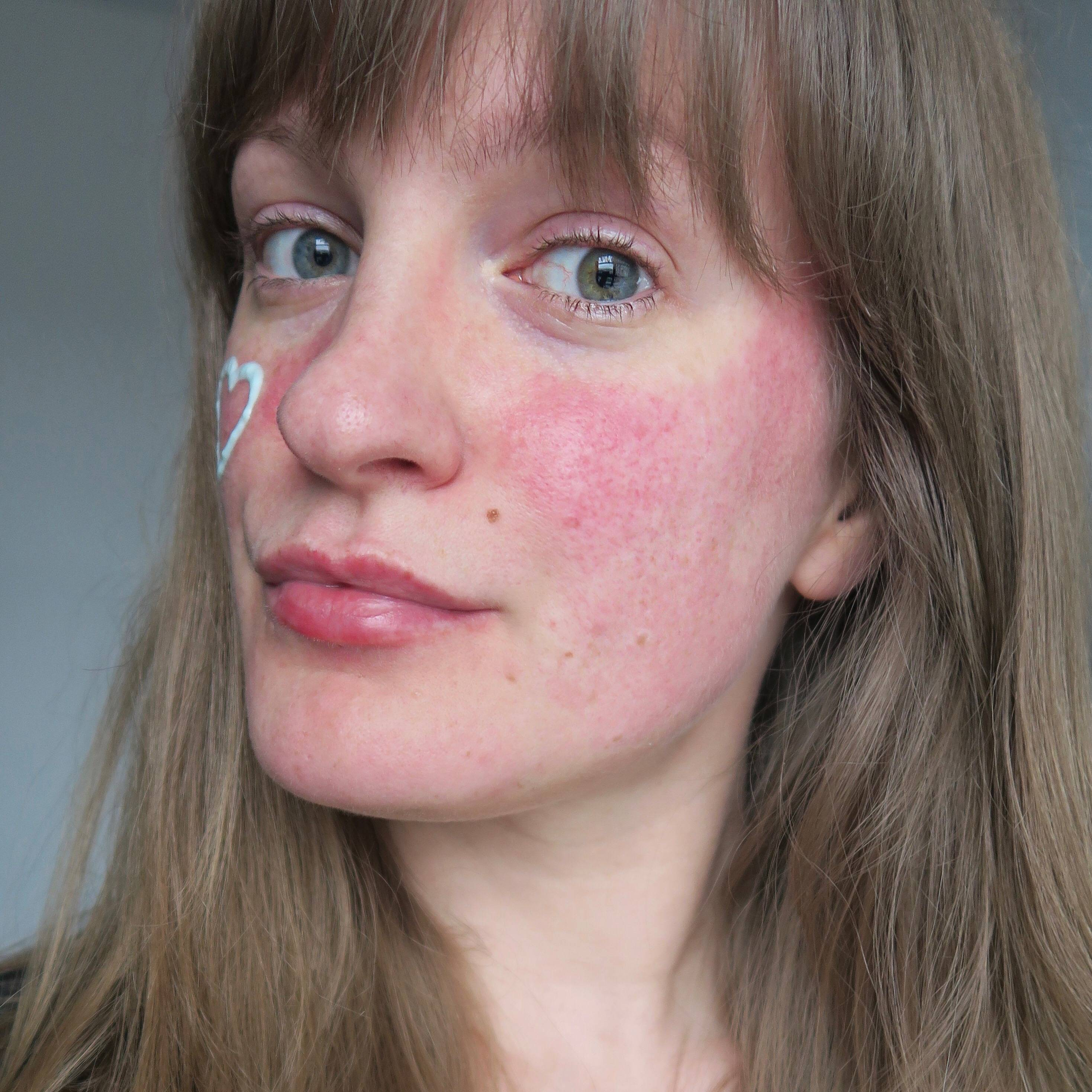 7 кремов от розацеа на лице, препараты для лечения, список антибиотиков, мази, средства и косметика