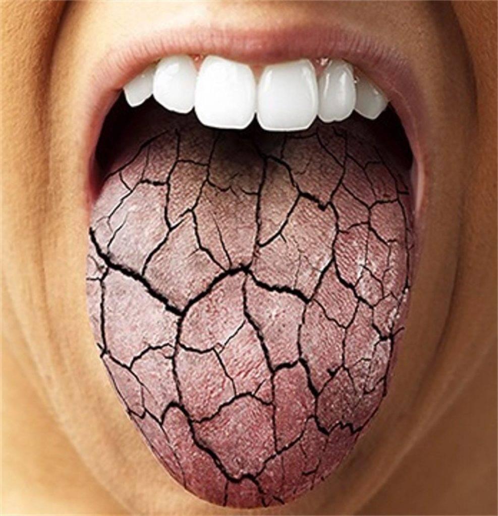 Почему во рту вяжет, о какой болезни говорят симптомы этого неприятного ощущения? почему вяжет во рту: причины, симптомы и особенности лечения.