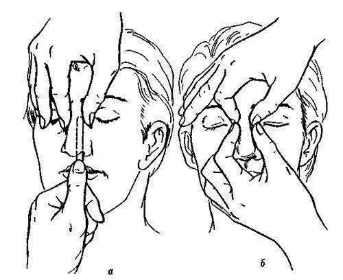 Перелом и репозиция костей носа